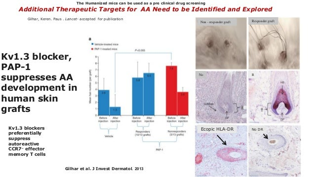 Kv1.3 blocker, PAP-1 suppresses AA development in human skin grafts Ecopic HLA-DR Non - responder graft Responder graft No...