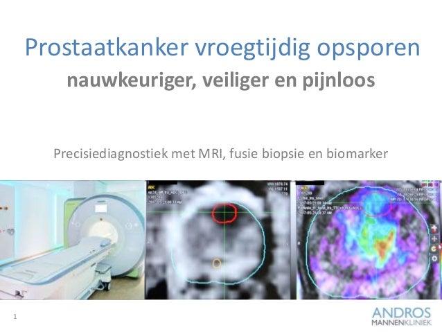 Prostaatkanker vroegtijdig opsporen 1 nauwkeuriger, veiliger en pijnloos Precisiediagnostiek met MRI, fusie biopsie en bio...