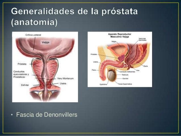Prostata (Hiperplasia, Carcinoma) Metodos Diagnosticos