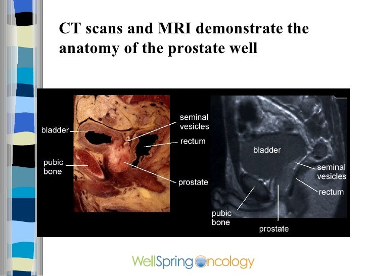 Can A Cat Scan Detect Prostate Cancer