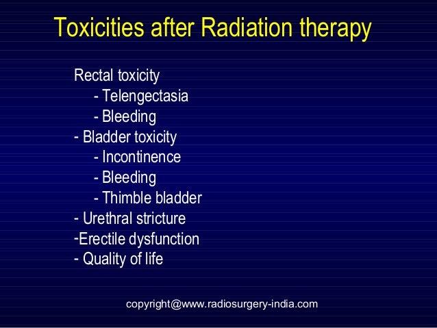 Radiation for prostate cancer rectal bleeding