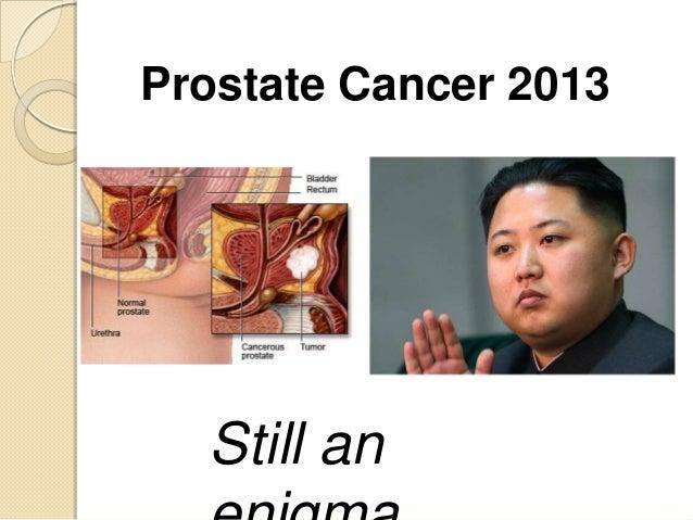 Prostate Cancer 2013  Still an
