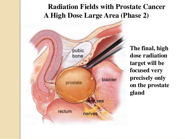 facts about prostate cancer
