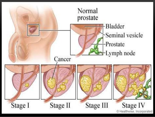 Prostate Cancer For Public Awareness By Dr Rubz