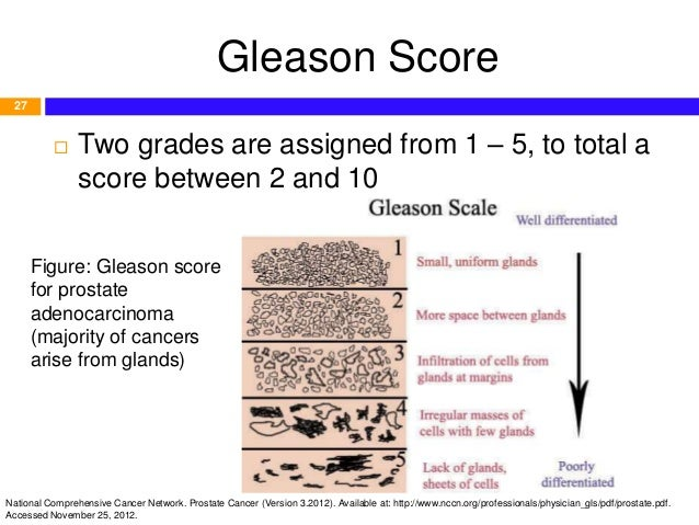 overview and pharmacotherapy of prostate cancer (based on nccn 2012 g\u2026gleason score