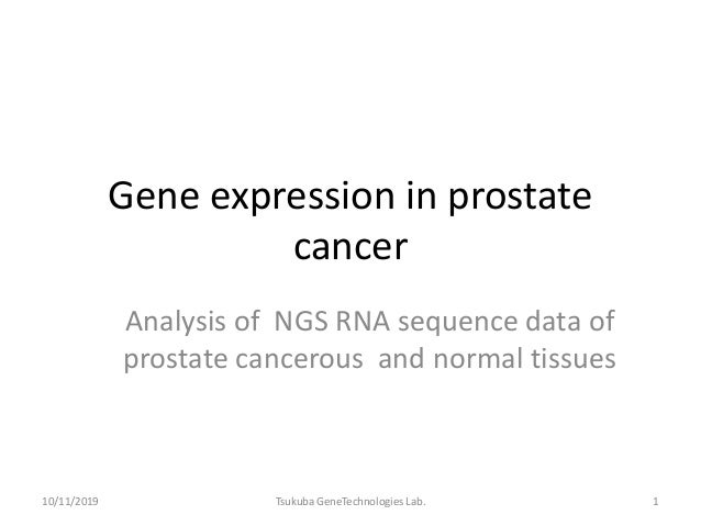 Gene expression in prostate cancer Analysis of NGS RNA sequence data of prostate cancerous and normal tissues 10/11/2019 1...