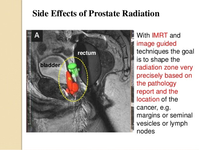 prostate cancer surgery side effects