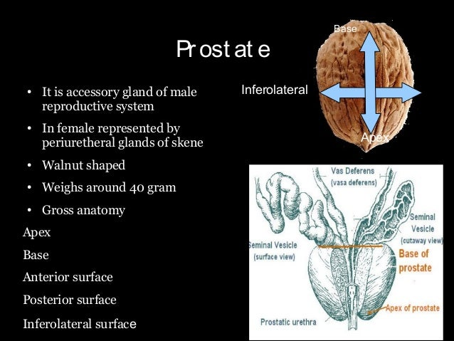 Anatomy Pathology An Staging Work Up Of Prostate Cancer