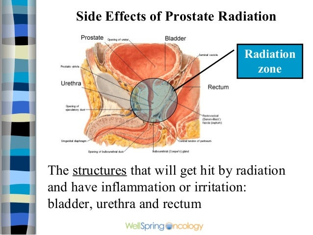 Radiotherapy For Prostate Cancer
