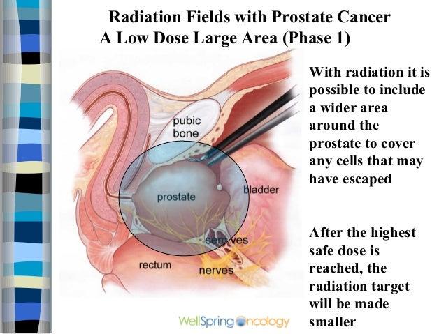 radiation treatment for prostate cancer