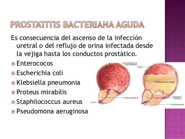 Escherichia coli prostatitis cronica