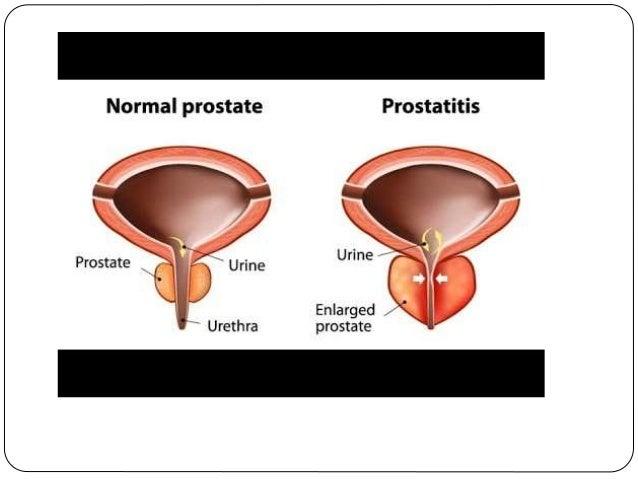 can prostatitis cause irritable bowel syndrome