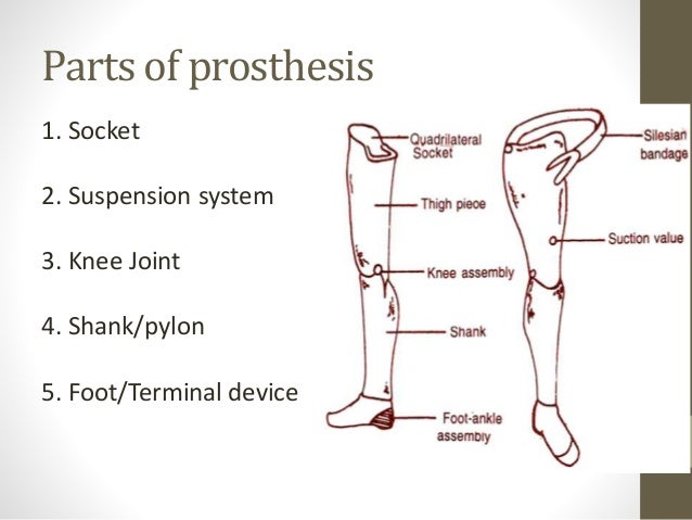 lower limbs prosthesis 7 638