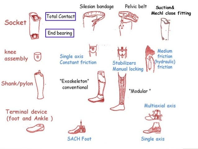 lower limb prothesis