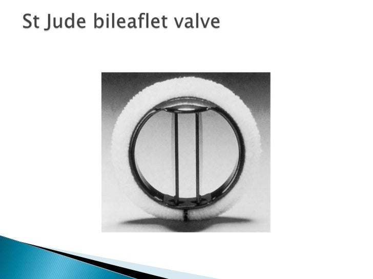 aortic valve prothesis St jude medical trifecta aortic valve: results from a prospective regional multicentre registry.