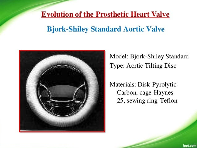 bjork shiley heart valve ethics response Bjork-shiley heart valve ethics response ethics are defined as rules or standards governing the conduct of a person or the members of a profession in the.