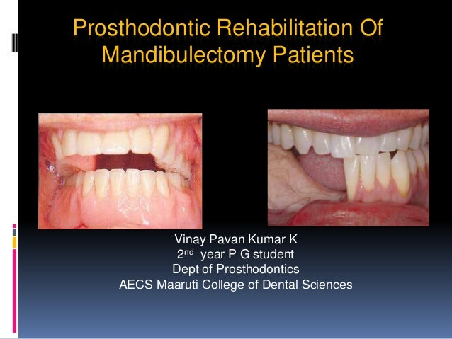 Prosthodontic Rehabilitation Of Mandibulectomy Patients Vinay Pavan Kumar K 2nd year P G student Dept of Prosthodontics AE...