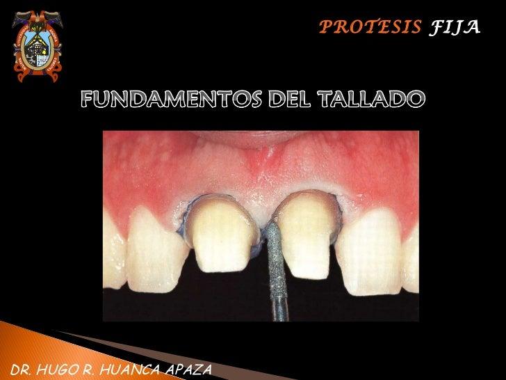 PROTESIS  FIJA DR. HUGO R. HUANCA APAZA