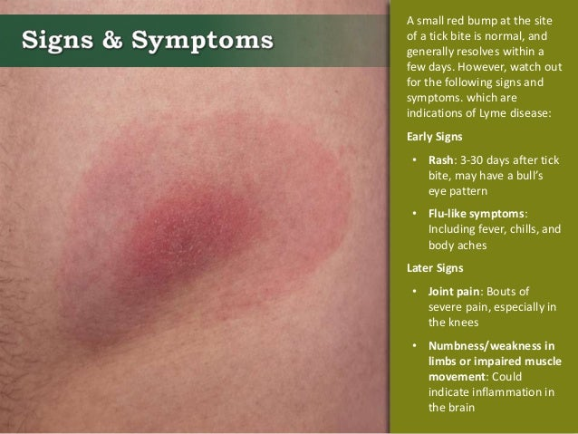 how to clean a tick bite on a person
