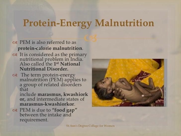 protein energy malnutrition Pediatr clin north am 2009 oct56(5):1055-68 doi: 101016/jpcl200907001  protein energy malnutrition grover z(1), ee lc author information.