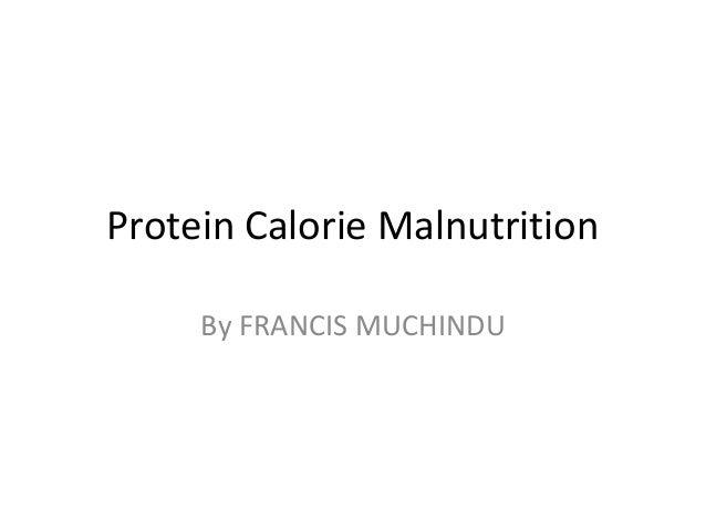 Protein Calorie Malnutrition By FRANCIS MUCHINDU