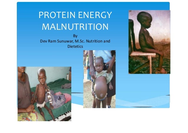 PROTEIN ENERGY MALNUTRITION By Dev Ram Sunuwar, M.Sc. Nutrition and Dietetics