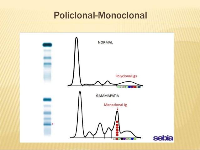 Resultado de imagen para proteinograma electroforetico gammapatías