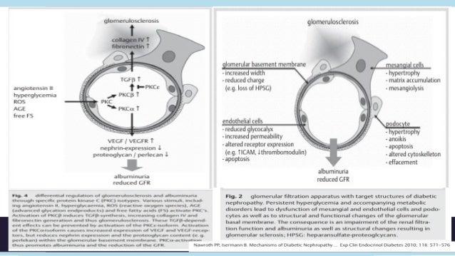 Albuminuria• Representa la presencia de mínimas cantidades que son indetectables  en la tirilla urinaria.• Excreción en pa...
