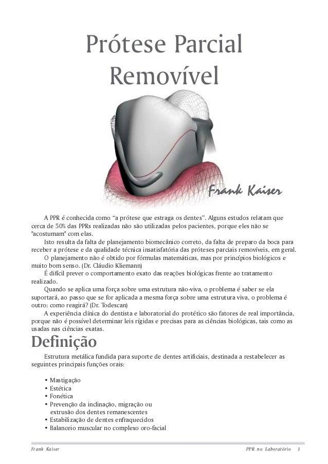 Frank Kaiser PPR no Laboratório 1 Prótese Parcial Removível Definição Estrutura metálica fundida para suporte de dentes ar...