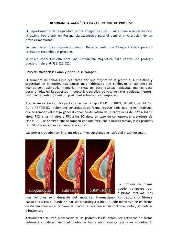 Protesis de mama 1