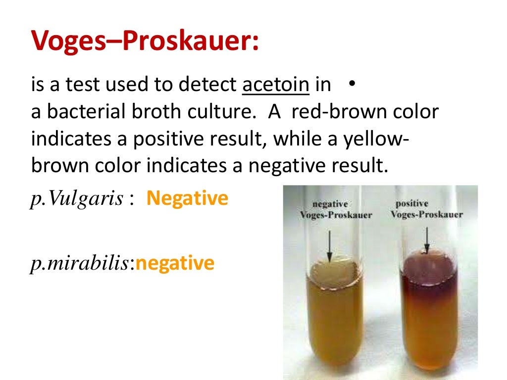 microbiology lab methyl red and voges proskauer