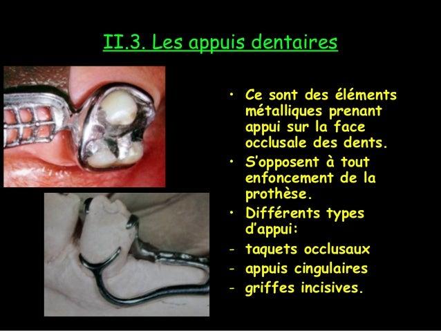 II.3. Les appuis dentaires • Ce sont des éléments métalliques prenant appui sur la face occlusale des dents. • S'opposent ...
