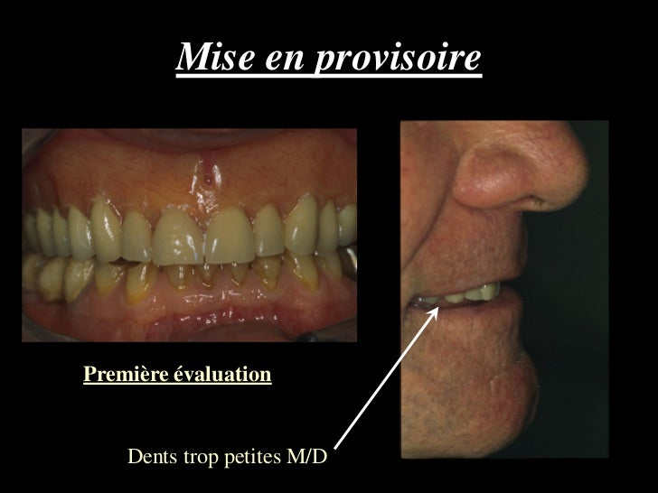 Mise en provisoirePremière évaluation    Dents trop petites M/D