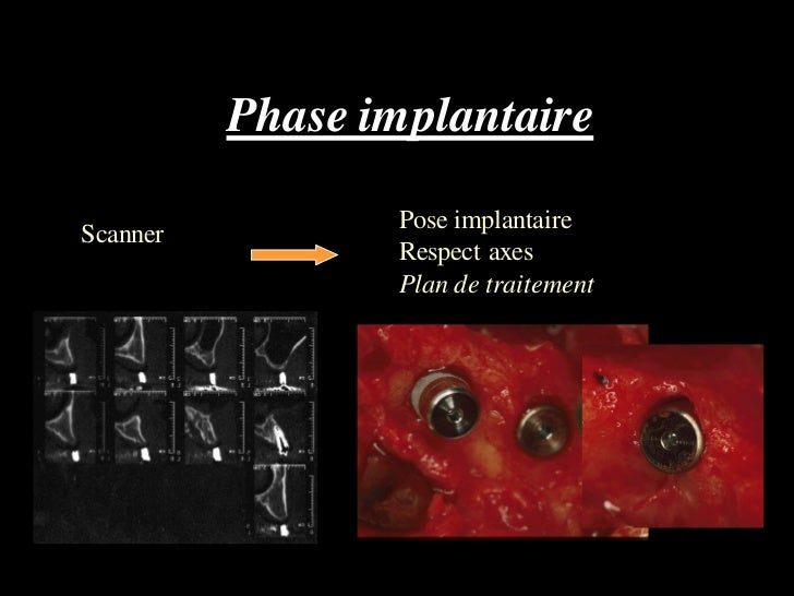 Phase implantaire                 Pose implantaireScanner                 Respect axes                 Plan de traitement