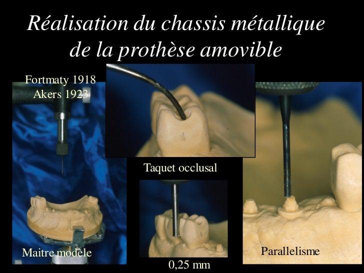 Réalisation du chassis métallique    de la prothèse amovibleFortmaty 1918 Akers 1923                Taquet occlusalMaitre ...
