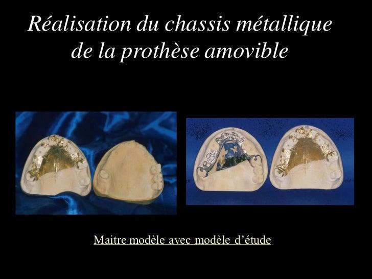 Réalisation du chassis métallique    de la prothèse amovible       Maitre modèle avec modèle d'étude