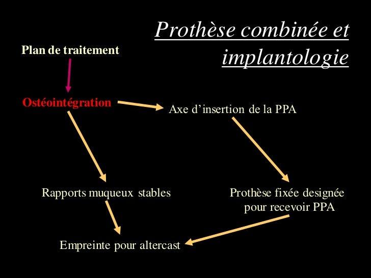 Prothèse combinée etPlan de traitement                                implantologieOstéointégration                       ...