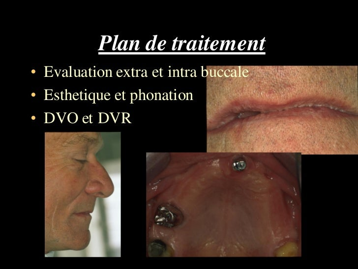 Plan de traitement• Evaluation extra et intra buccale• Esthetique et phonation• DVO et DVR