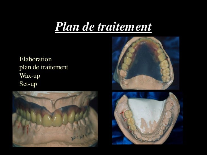 Plan de traitementElaborationplan de traitementWax-upSet-up