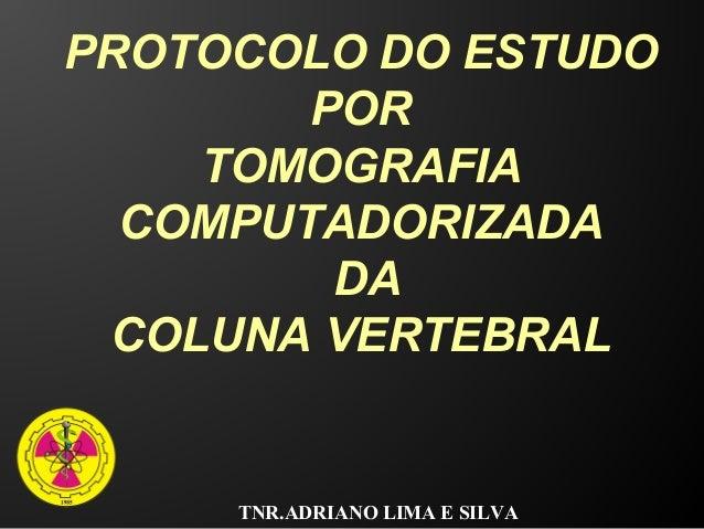 TNR.ADRIANO LIMA E SILVA PROTOCOLO DO ESTUDO POR TOMOGRAFIA COMPUTADORIZADA DA COLUNA VERTEBRAL