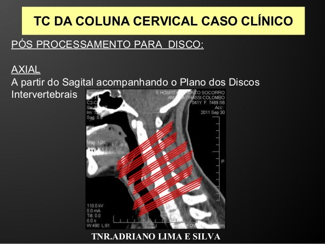 Exame da coluna cervical