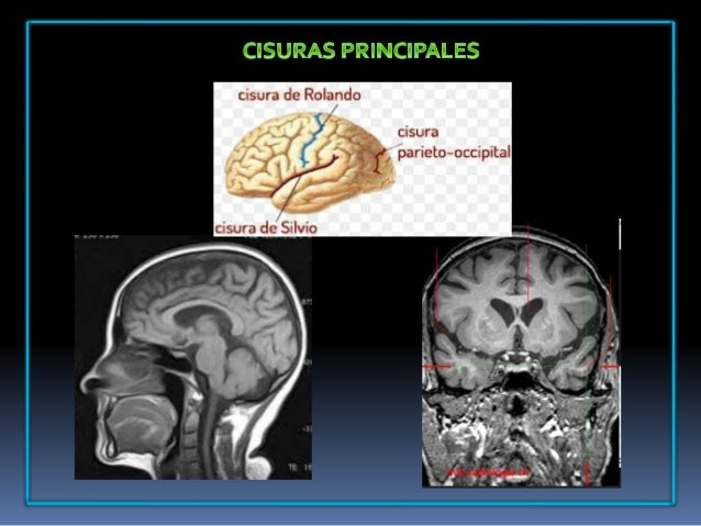 Protocolo de cerebro RMN