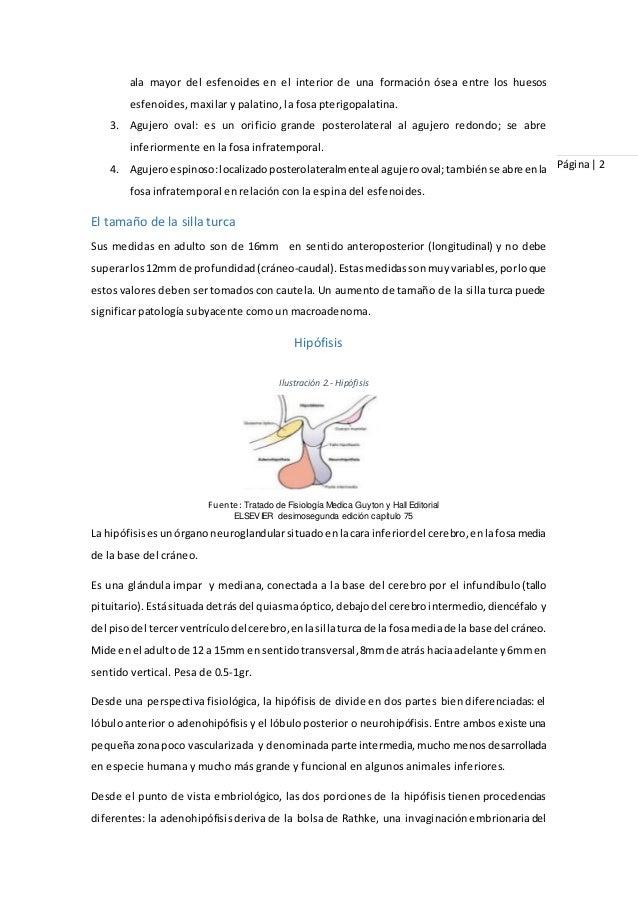 Protocolo de silla turca en tomografia axial computarizada