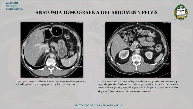 PROTOCOLO DE TOMOGRAFÍA COMPUTADA DE ABDOMEN Y PELVIS