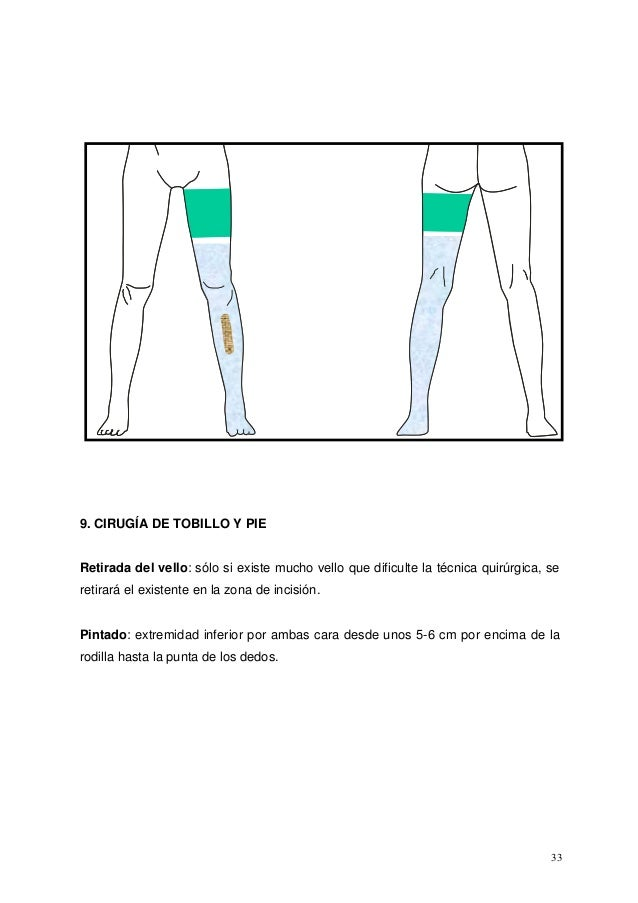 Safenectomia tecnica quirurgica