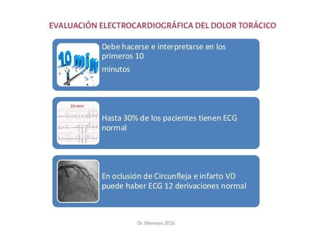 Debe hacerse e interpretarse en los primeros 10 minutos Hasta 30% de los pacientes tienen ECG normal En oclusión de Circun...