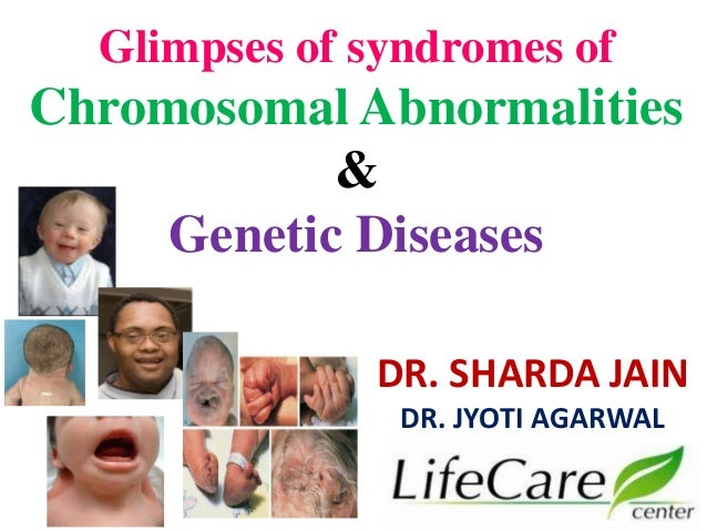 Glimpses of syndromes of Chromosomal Abnormalities & Genetic Diseases DR. SHARDA JAIN DR. JYOTI AGARWAL