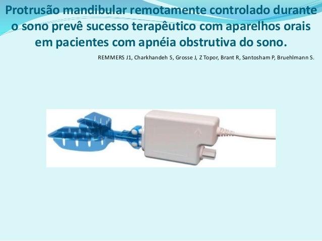 Protrusão mandibular remotamente controlado durante o sono prevê sucesso terapêutico com aparelhos orais em pacientes com ...