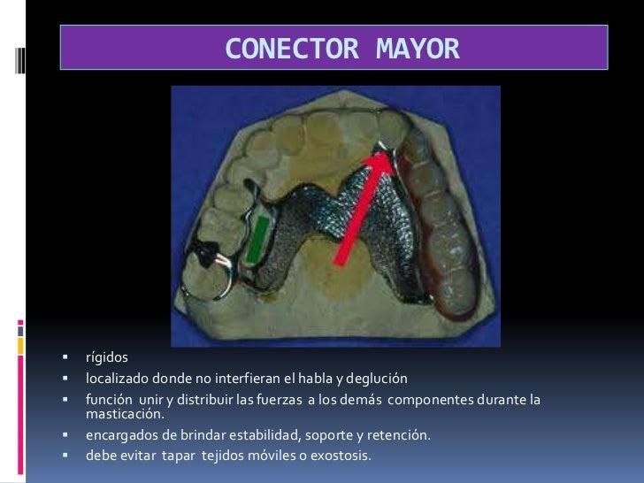 CONECTOR MAYOR<br />rígidos<br />localizado donde no interfieran el habla y deglución <br />función  unir y distribuir la...