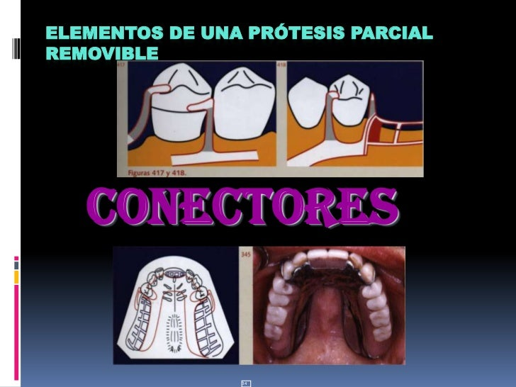 34<br />Elementos de una Prótesis Parcial Removible<br />CONECTORES<br />